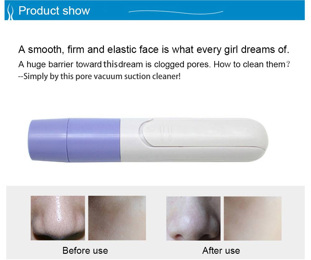 Handheld Electric Blackhead Remover Cleaner Vacuum Suction Skin Care Nose Mask as picture 1